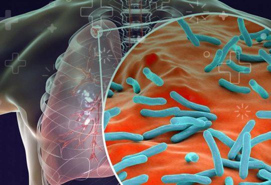 tuberculisis día mundial oms salud es hora enfermedad infección pulmones