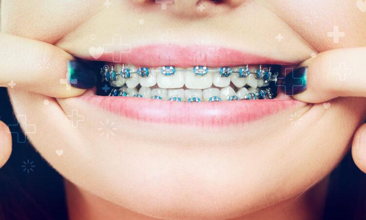 ORTODONCIA, brackets, salud oral
