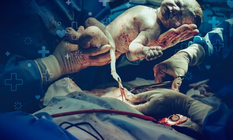 la sangre de la placenta y del cordón umbilical salva vidas