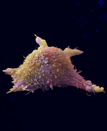 cancer-bajo-el-covid